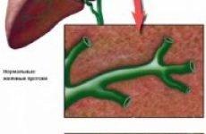 Що таке холангіт, симптоми і лікування хвороби