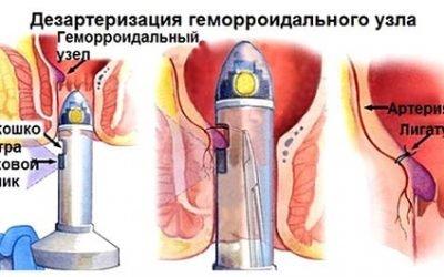 Опис дезартеризации гемороїдального вузла і показання до операції