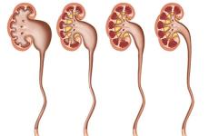 Уретерогидронефроз — що це таке, двостороннє захворювання