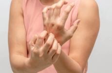 Перші ознаки та симптоми корости у дорослих