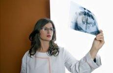 Микционная цистографія: як робиться у дітей ретроградна цистографія