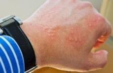Дисгідрозі кистей рук: симптоматика та причини появи, лікування і профілактика, протипоказання і дієта