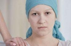 Асцит черевної порожнини при онкології: скільки живуть, лікування, прогнози, як прибрати