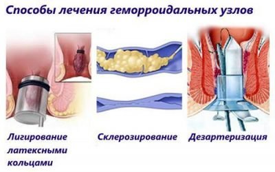 Як проводять склеротерапію при наявності гемороїдального вузла