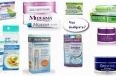Мазі від шрамів і рубців: видалення і загоєння кремами і гелями