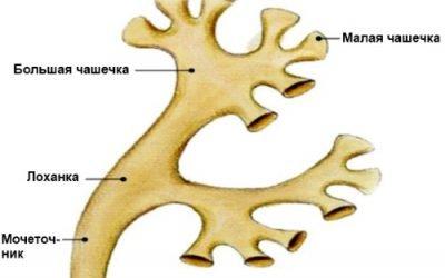 Чашково-мискова система розширена – що це таке, розширення ЧМС правої і лівої нирки