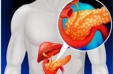 Причини формування біліарного панкреатиту та його симптоми