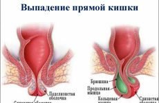 Випадання прямої кишки: що це таке, які причини і лікування