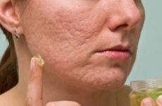 Кращі крему/мазі від рубців (плям, слідів, шрамів) від прищів на обличчі
