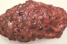 Мультикистоз нирок: що таке мультикистозная дисплазія лівої і правої нирки у плода і новонародженої дитини, причини мультикистоза
