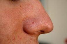 Простудні прищі: види прищів на обличчі і їх лікування, причини утворення