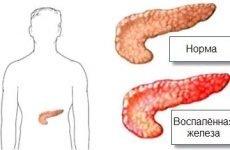 Чим зняти біль і запалення в підшлунковій залозі в домашніх умовах