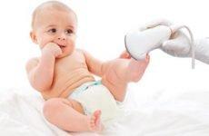 Балія нирки розширена у дитини: піелоектазія у новонародженого