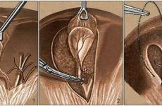 Дієта після видалення жовчного міхура: особливості харчування, що можна їсти після операції