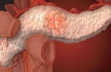 Гіперфункція підшлункової залози: симптоми, діагностика, лікування
