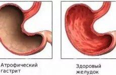 Найефективніші способи лікування атрофічного гастриту народними засобами