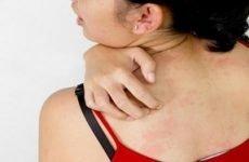 Чим лікувати роздратування на шкірі: мазі від подразнення на обличчі, голові і в інтимній зоні, гелі проти висипань