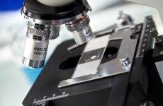 Спермограма: МАР тест, причини появи АСАТ, як здати тест