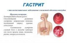 Болить шлунок: що робити, причини й лікування, чому виникає біль, симптоми