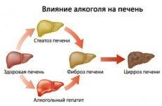 Алкогольний гепатит: симптоми і лікування токсичного гепатиту, як лікувати