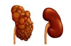 Полікістоз нирок — що це таке | Симптоми і лікування полікістозу