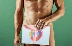 Хронічний простатит у чоловіків: симптоми, причини, лікування