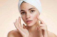 Прищі на обличчі: як позбутися (прибрати). Причини і лікування прищів і вугрової висипки на обличчі