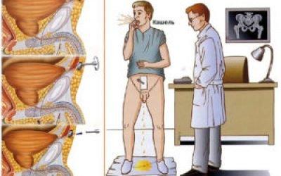 Нетримання сечі у чоловіків класифікація ознаки методи лікування народні методи операція медикаменти