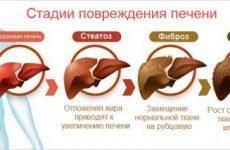Алкогольний цироз печінки: симптоми і ознаки, лікування алкоголіків
