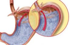 Симптоми захворювання билиальный рефлюкс гастрит