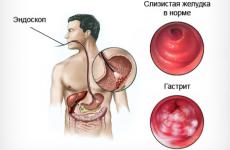 Характеристика ерозивного антрального гастриту і його лікування