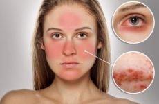 Розацеа на обличчі: причини і лікування, симптоми, як лікувати народними засобами, мазями, харчуванням