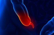 Заходи для ефективної профілактики запалення апендикса
