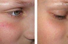 Причини і лікування куперозу на обличчі, аптечні та косметичні засоби проти судинної зірочки