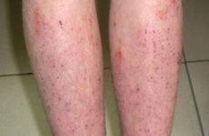 Екзема на ногах: початкова стадія, фото, симптоми, лікування