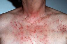 Нейродерміт: симптоми, причини, діагностика, лікування