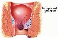 Симптоматика внутрішнього геморою та методи лікування виходячи з них