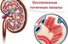 Гострий гломерулонефрит з нефротичним синдромом, хронічна нефротичний форма гломерулонефриту