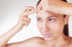 Прищі на лобі у жінок і чоловіків: причини і лікування. Як позбутися від дрібних і підшкірних прищів на лобі