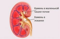 Камінь в балії нирки: що робити і яке лікування у жінок