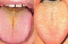 Жовтий наліт на мові: причини і лікування, що це означає, на яке захворювання вказує?
