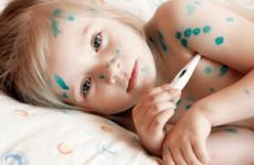 Які можуть бути ускладнення після вітрянки у дитини, дорослого