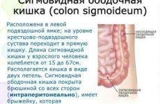 Болі зліва внизу живота у жінок: чому болить лівий бік, причини
