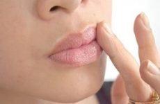 Жировики на губах: причини, як позбутися. Лікування білих жировиків на губах