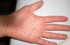 Прищі на долонях: причини і лікування. Як позбутися від водянистих плям на долонях