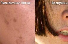Пігментні плями на обличчі: причини, як прибрати
