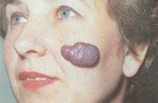 Гемангіома на шкірі у дорослих: причини, види, лікування, рецепти