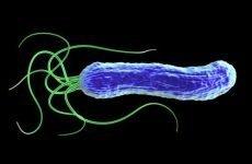 Аналіз калу на дисбактеріоз кишечника: як здавати на дослідження, розшифровка