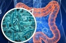 Шляхи проникнення кишкової амеби і симптоми інфікування