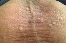 Жировик на яєчках: причини появи, способи лікування ліпоми під шкірою на мошонці і заходи профілактики